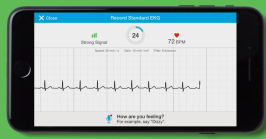 download the app and it's instant EKG.